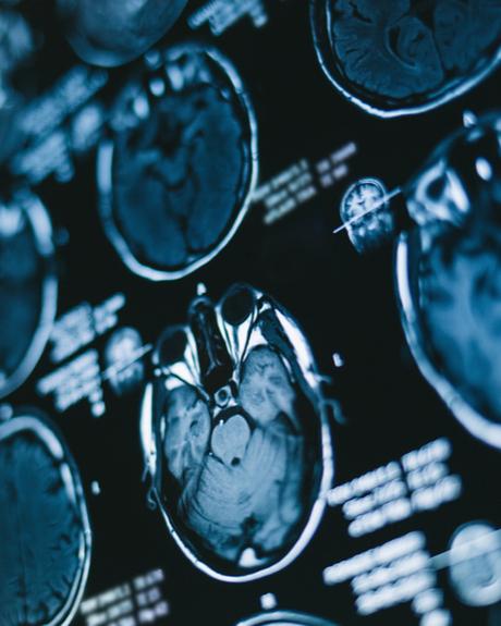 Brain Injury X-Ray
